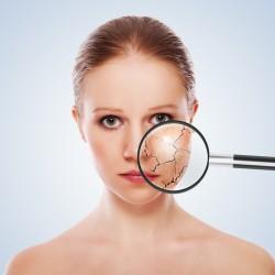Какво причинява и как да се грижим за сухата кожа?