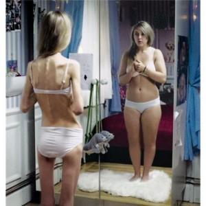 anorexia-nervosa-image