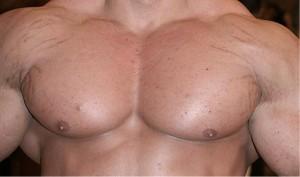 bodybuilding-stretch-marks