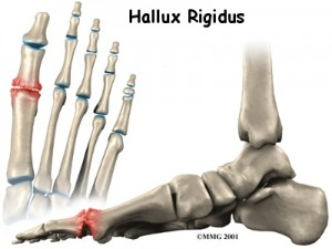 foot_hallux_rigidus_intro01