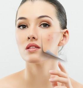 acne (1)
