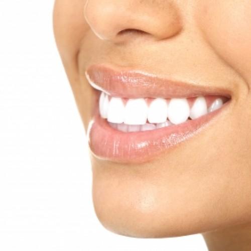Искрящо бели зъби? Да, но не на всяка цена!