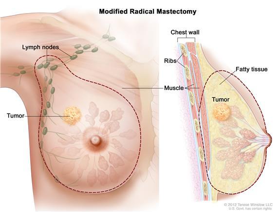 мастектомия